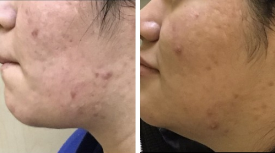 Acne Scarring Transformation Before and After 1