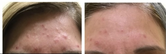 Acne Scarring Transformation Before and After 2