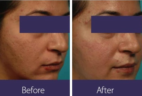 Acne Treatment Before and After 2