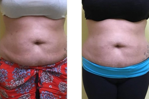 Body Contouring Before and After 1