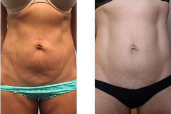 Body Contouring Before and After 2