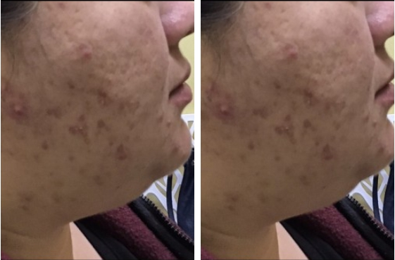 Skin Resurfacing - Neck Before and After 1