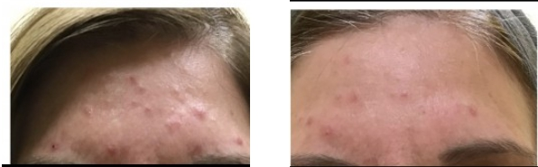 Acne Before and After 4