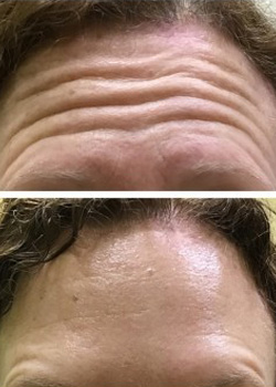 Botox Before and After 2