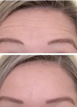 Botox Before and After 4