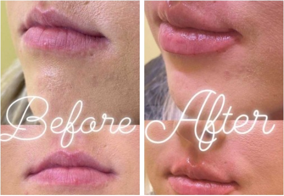 Fillers Before and After 2