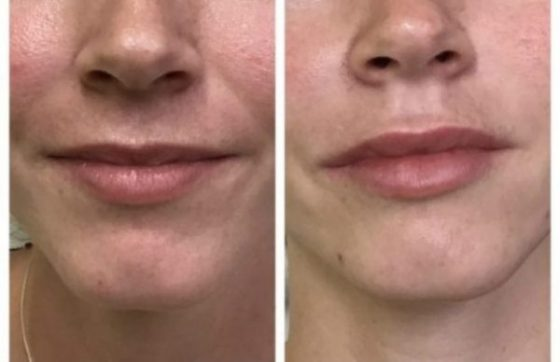 Juvederm and Filler RGB