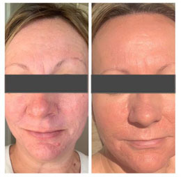 Skin Resurfacing Before and After 1