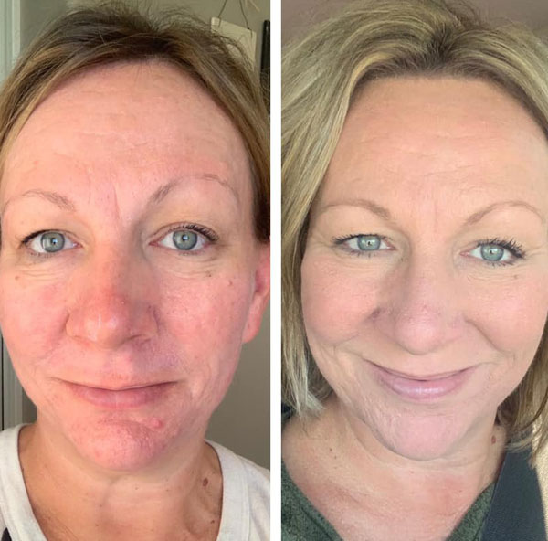 Skin Resurfacing Before and After 2