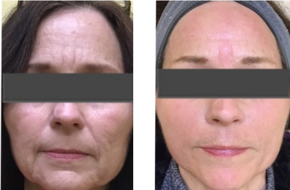 Skin Resurfacing Before and After 3