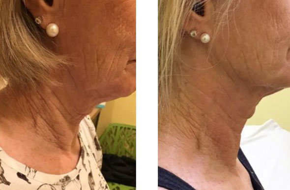Skin Resurfacing Before and After 5
