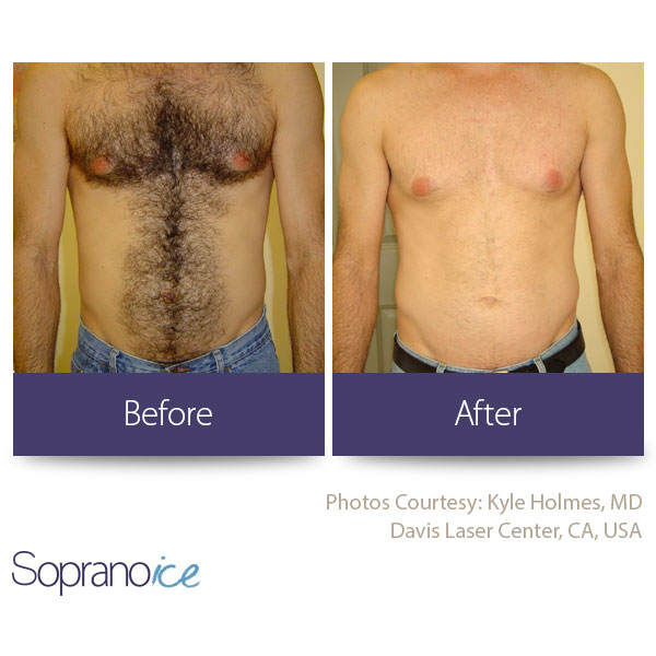 Before And After Laser Hair Removal 1