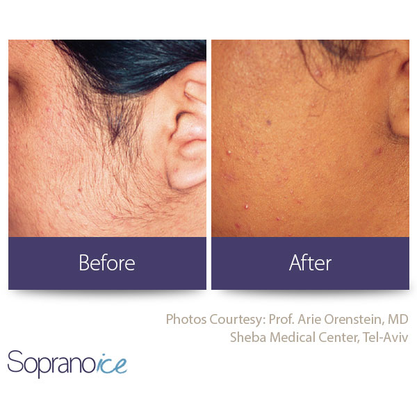 Before And After Laser Hair Removal 2