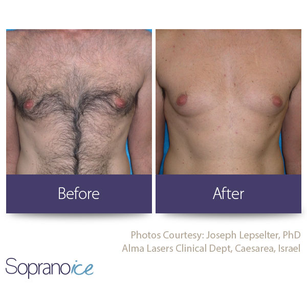 Before And After Laser Hair Removal 3
