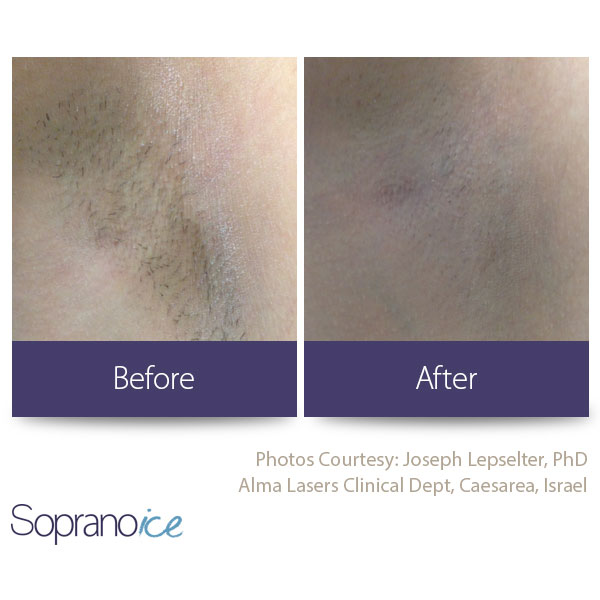 Before And After Laser Hair Removal 4