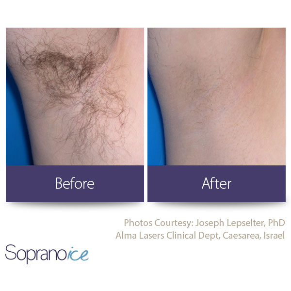 Before And After Laser Hair Removal 5