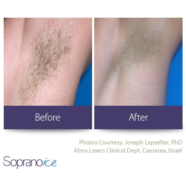Before And After Laser Hair Removal 6