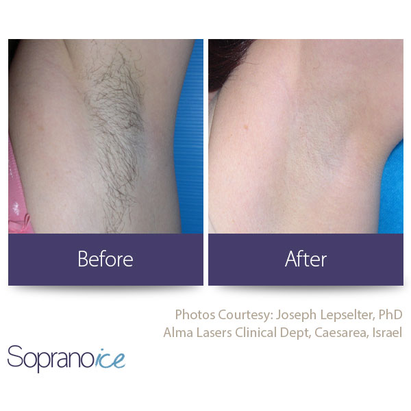 Before And After Laser Hair Removal 7