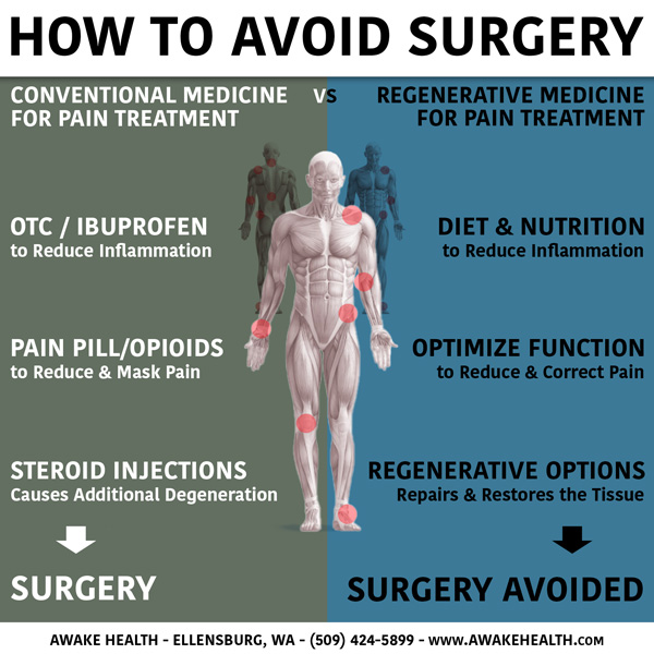 How to Avoid Surgery