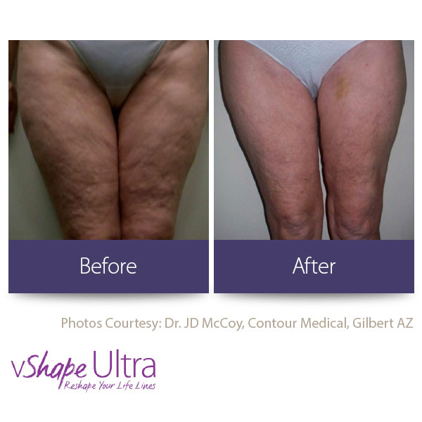 vShape Ultra Before and After Body Sculpting 16