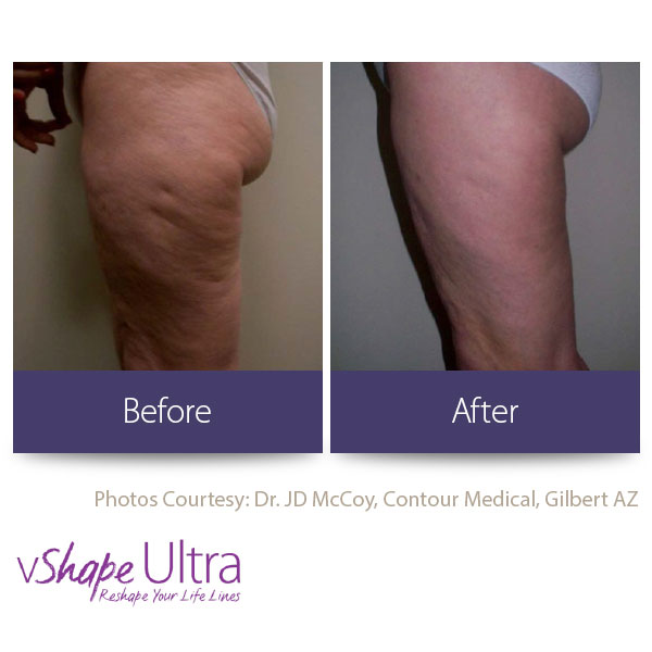 vShape Ultra Before and After Body Sculpting 17-1
