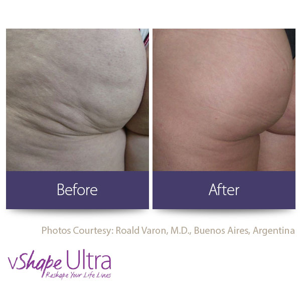 vShape Ultra Before and After Body Sculpting 18