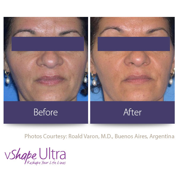 vShape Ultra Before and After Body Sculpting 19