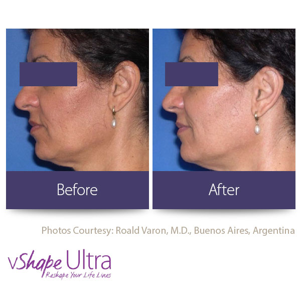 vShape Ultra Before and After Body Sculpting 20