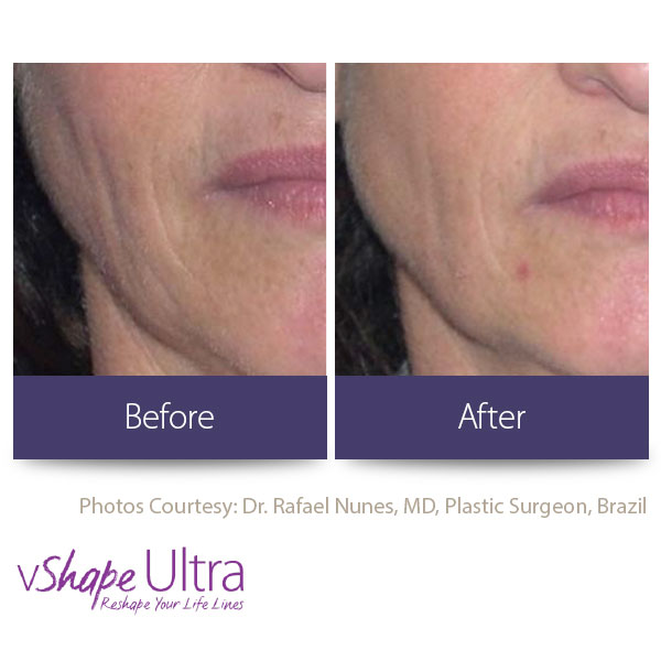 vShape Ultra Before and After Body Sculpting 21