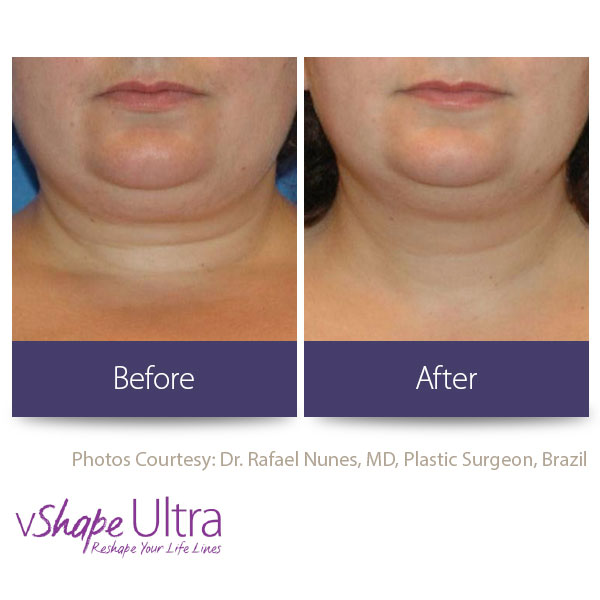 vShape Ultra Before and After Body Sculpting 22