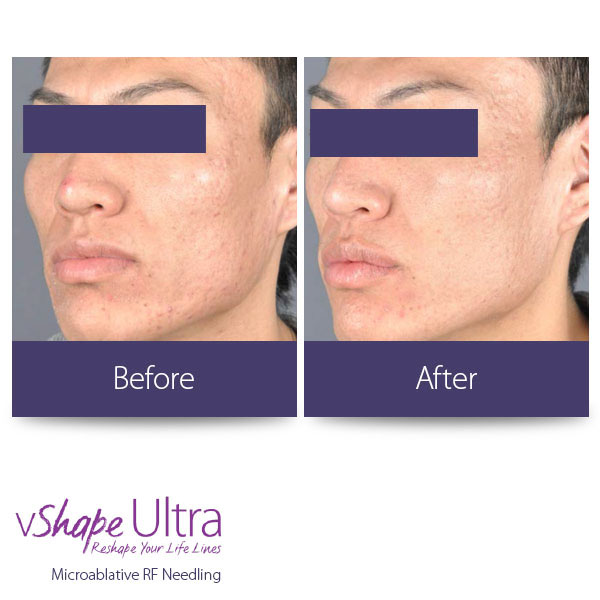 vShape Ultra Before and After Body Sculpting 24