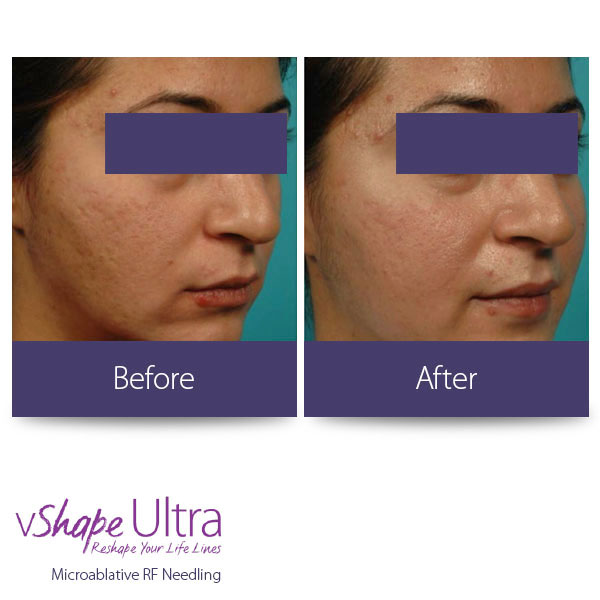 vShape Ultra Before and After Body Sculpting 25