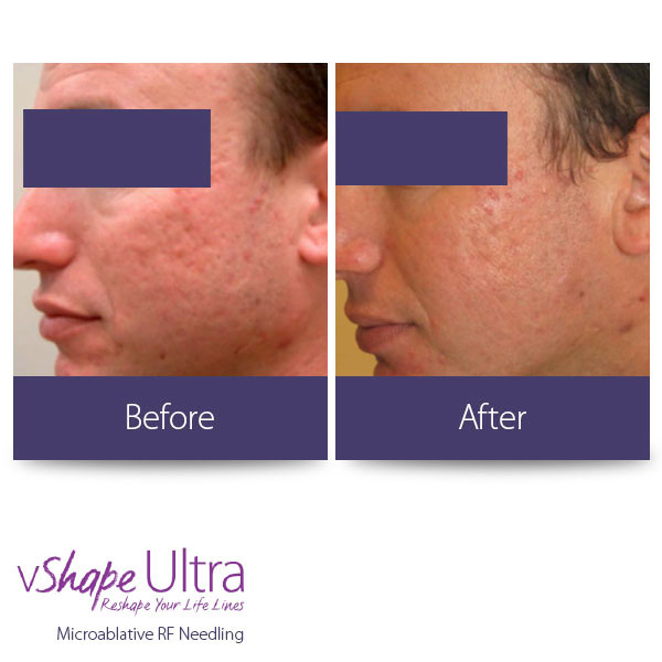 vShape Ultra Before and After Body Sculpting 26