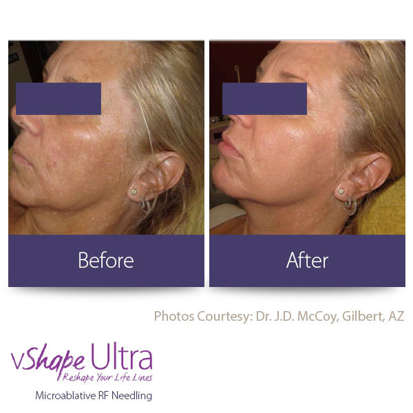 vShape Ultra Before and After Body Sculpting 27