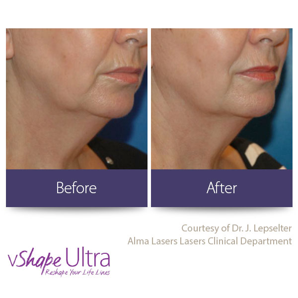 vShape Ultra Before and After Body Sculpting 7-1