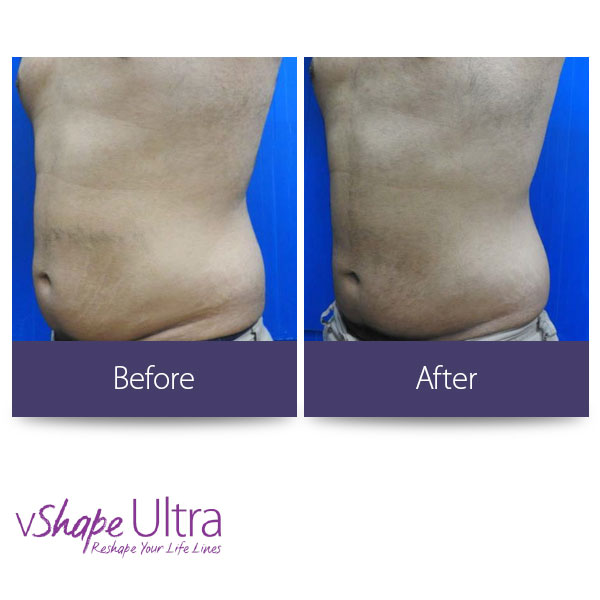 vShape Ultra Before and After Body Sculpting 9